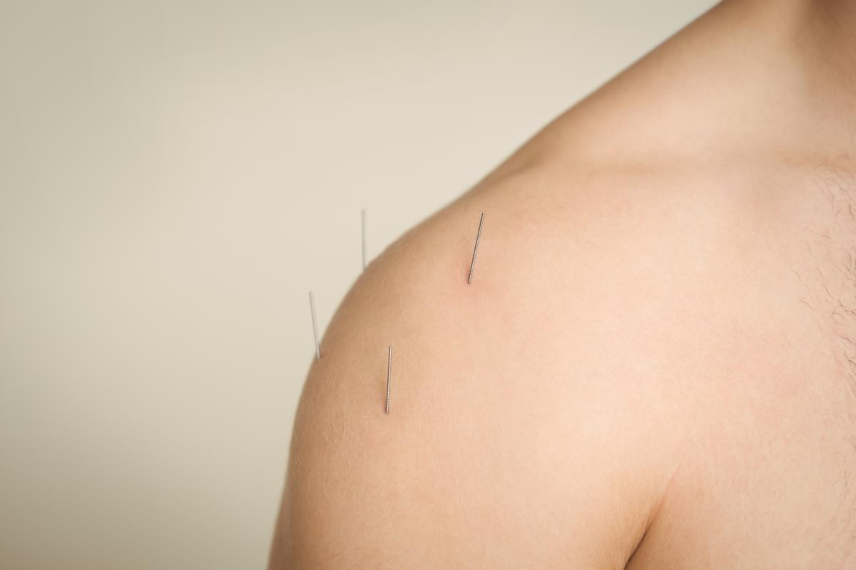 Close-up of a patient getting dry needling #413948