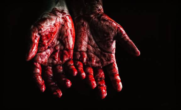 Person's Hands Covered With Blood Free Photo