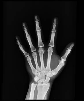 Hand X-ray Result Free Photo