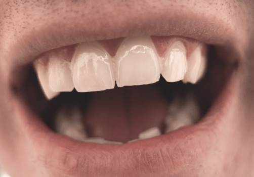 Mouth And Teeth Close Up - free stock photo #399528