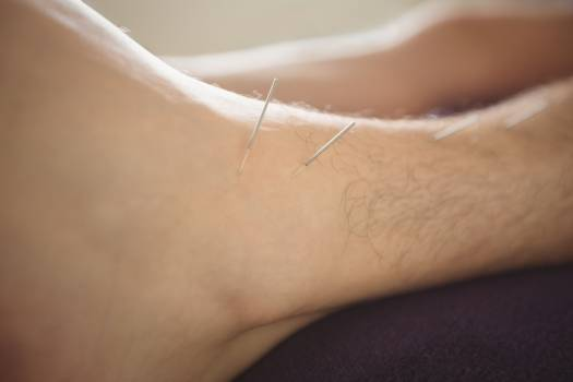 Patient getting dry needling on leg #409735