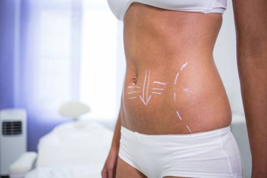 Female body with the drawing arrows for abdomen for liposuction and cellulite removal #410512