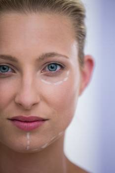 Woman with marks drawn for botox procedure #411403