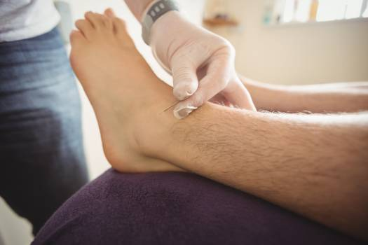 Physiotherapist performing dry needling on the leg of a patient #412087
