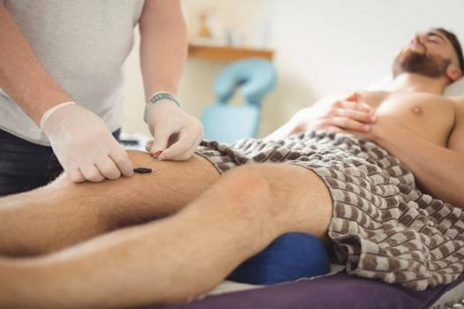 Physiotherapist performing dry needling on the knee of a patient #412740