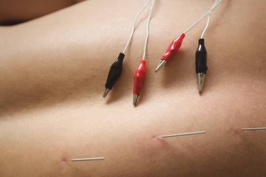 Mid section of a patient getting electro dry needling on his back Free Photo
