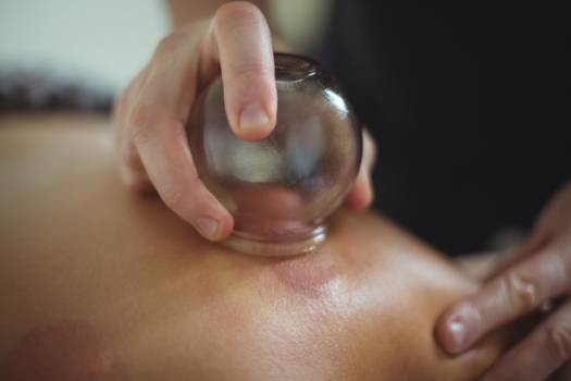 Close-up of therapist giving cupping therapy to man #417386