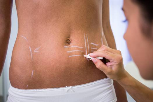 Surgeon drawing lines on womans abdomen for liposuction and cellulite removal #417868